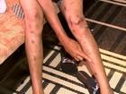 'Acidente salvou a vida dela', diz irmão de jovem torturada pelo ex