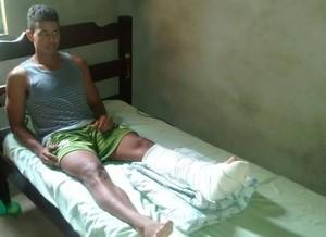 Rodrigo está se recuperando da cirurgia (Foto: Rodrigo Carvalho/ Arquivo pessoal)