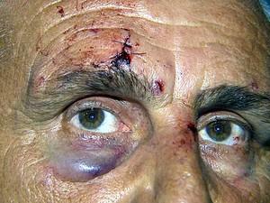 O motorista Josimar da Silva que foi agredido por assaltantes em Hortolândia (Foto: Reprodução EPTV)