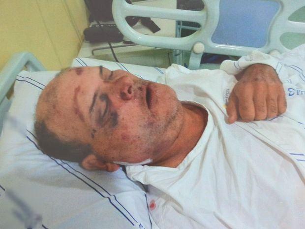 Fotografia feita pela família de José Hunaldo após a cirurgia (Foto: Reprodução/Facebook)
