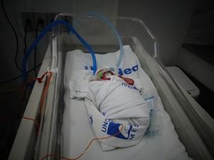 Primeiro bebê do ano de Maceió nasceu prematuro (Foto: Carolina Sanches/ G1)