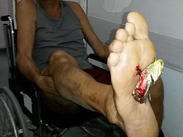 Bagre ficou preso no pé do homem (Foto: Sueli Alves / Arquivo Pessoal)