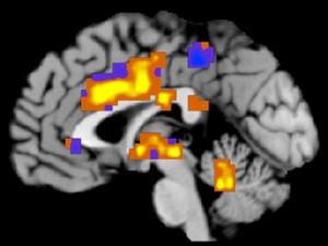 Imagem de ressonância magnética mostra regiões do cérebro em que a dor é registrada (Foto: Tor Wager/Universidade do Colorado/AP)