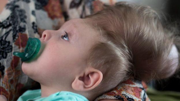 Futuro de menino ainda é uma incógnita, dizem médicos (Foto: C. Cohen/Hospital Infantil de Boston)