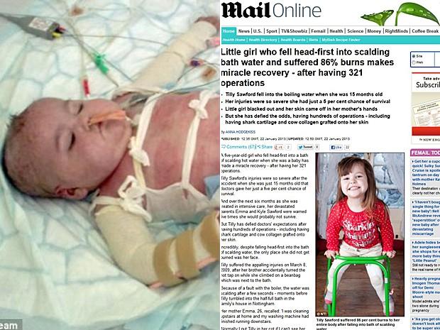 Menina teve 86% do corpo queimado e se recuperou após 321 cirurgias (Foto: Montagem Daily Mail/Reprodução)