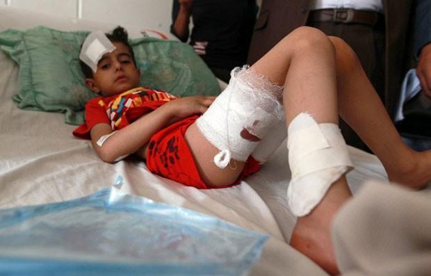 Imagem do dia 21 de março mostra criança iemenita em cama de hospital, após ataque na capital, Sanaa, no dia anterior (Foto: AFP/Mohammed Huwais)