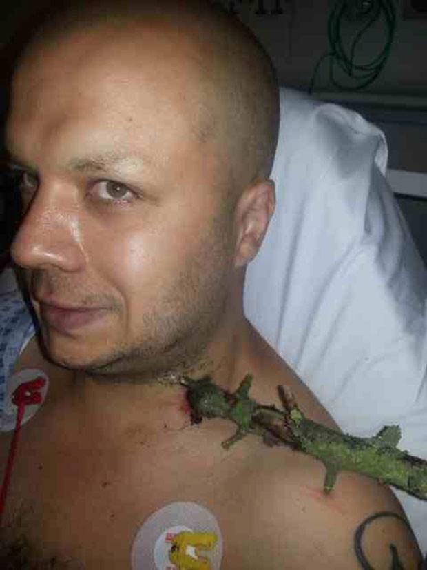 O ciclista Adrian Binns em foto na qual aparece com um galho que perfurou seu pescoço após um acidente (Foto: SWNS/The Grosby Group/Caters)