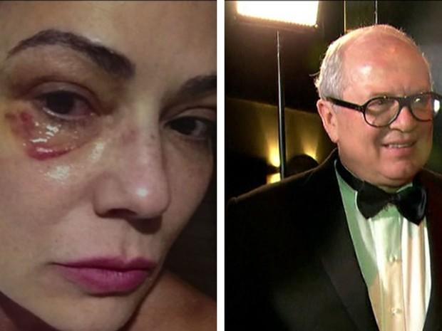 Luiza Brunet falou ao Ministério Público (MP) que foi agredida mais de uma vez por Lírio Parisotto (Foto: Reprodução / TV Globo)