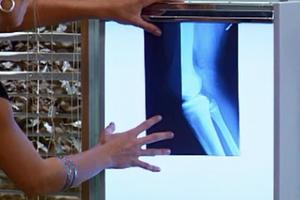 Júlia examina a radiografia de César e fica chocada (Foto: reprodução/TV Globo)