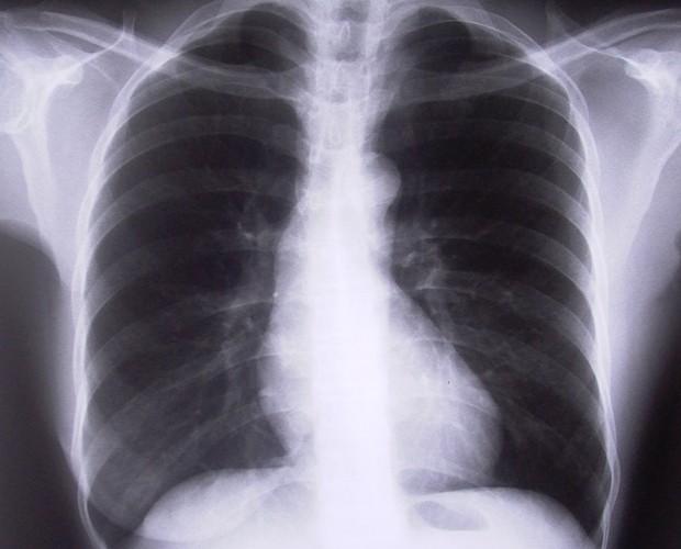 Embolia pulmonar: aprenda a identificar os sintomas  (Foto: Mais Você/TV Globo)