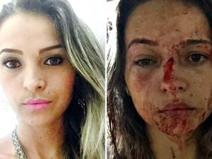 Pamela antes e depois de ter sido agredida pelo lutador de MMA durante invasão na casa da amiga  (Foto: Milliane Silva/Arquivo pessoal)
