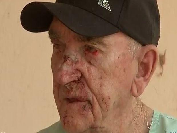 Oswaldo Botschauer também foi agredido durante tentativa de assalto (Foto: Reprodução/TV TEM)
