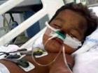 Família pede ajuda após criança ter pernas amputadas devido a meningite