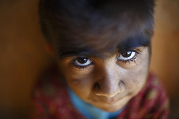 A menina Mandira Budhathoki, de 7 anos, também tem a síndrome que afeta sua mãe e irmãos. (Foto: Reuters/Navesh Chitrakar)
