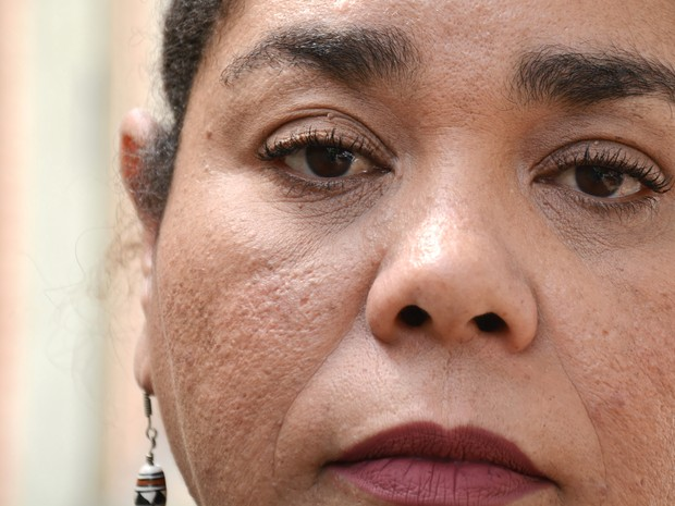 Fabiana Candida luta contra a depressão há seis anos (Foto: Fernando Pacífico / G1 Campinas)