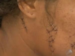 Mulher de vaqueiro teve o rosto atingido por facadas (Foto: Imagens / TV Bahia)