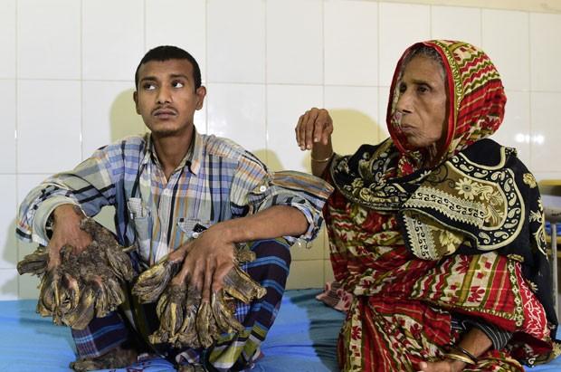 Segundo médico, ele sofre de epidermodisplasia verruciforme, doença rara (Foto: Munir Uz Zaman/AFP)