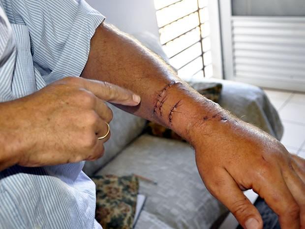 Professor mostra marcas deixadas por jacaré no braço (Foto: Pollyana Araújo/ G1)