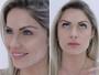 Renata D'Ávila fala de primeira aplicação de botox: 'Preventivo'
