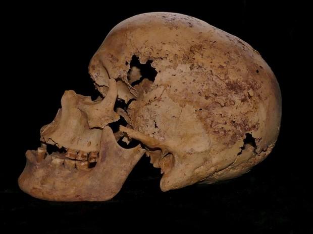 Esqueleto de mulher que viveu há mais de 4 mil anos foi analisado por cientistas, que detectaram evidências do mais antigo caso de câncer de mama já registrado. (Foto: Ministério de Antiguidades do Egito/Reuters)