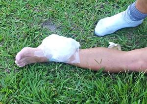 Atacante Hitalo coloca gelo no tornozelo machucado (Foto: Eduardo Dias)