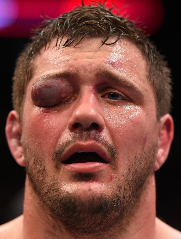 BLOG: Após dedo no olho e castigo no chão, Mitrione deixa octógono desfigurado