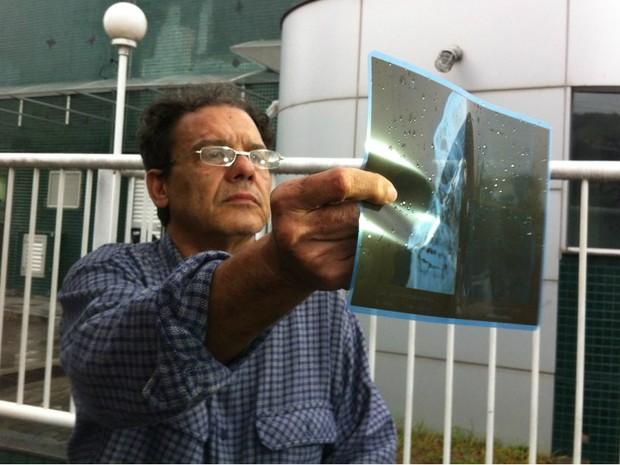 Médio mostra radiografia após agressão (Foto: Diony Silva/ CBN Vitória)