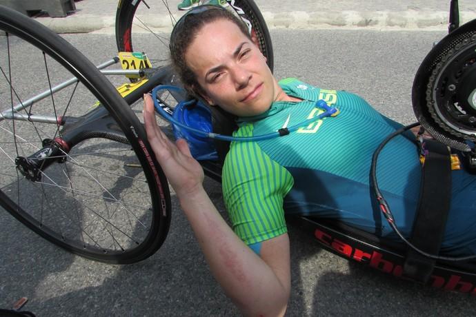 Jady Malavazzi mostra marcas de machucado no braço (Foto: Felipe Siqueira)