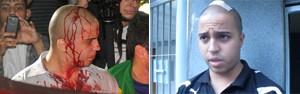 Ferido diz que foi confundido com skinhead (Flavio Moraes/G1/ Paulo Piza/G1)