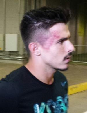 Atacante Willian mostra hematoma na cabeça após o clássico (Foto: Marco Astoni)