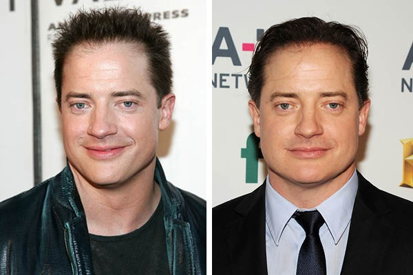 Brendan Fraser (Foto: Getty Images)