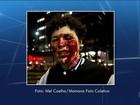 Estudante sofre lesão no olho em protesto contra impeachment em SP