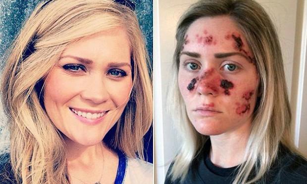 Foto com mais de 55 mil compartilhamentos na web mostra efeitos do câncer de pele em jovem