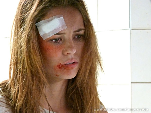 Paloma machucada após espancamento (Foto: Amor à Vida/ TV Globo)
