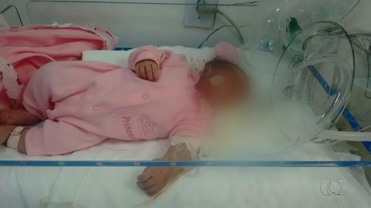 Recém-nascida tem melhora e não precisa mais de UTI, diz secretaria