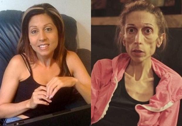 Rachael Farrokh antes e depois (Foto: Reprodução)