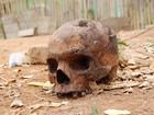 Crânio humano com perfuração é encontrado em Alpercata