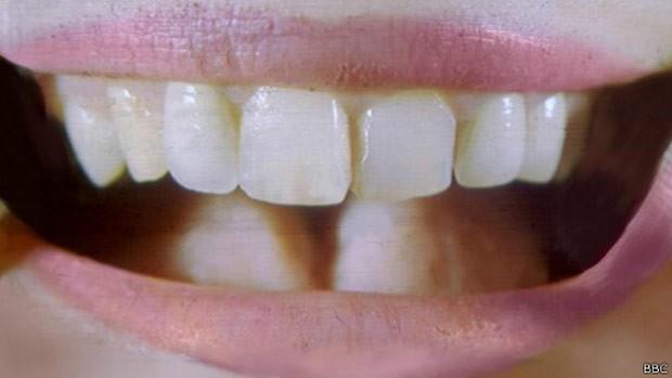 Cientistas chineses tentam criar dentes a partir de urina (Foto: BBC)