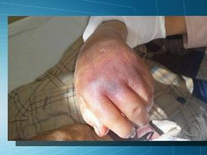 Ferimentos causados em técnica de contenção a idoso (Foto: Reprodução / TV Morena)
