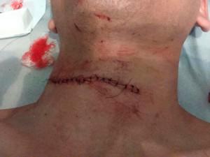 Estudante teve pescoço cortado por linha de pipa em Barreiras, na Bahia (Foto: Arquivo pessoal)