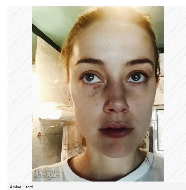 Amber Heard em fotos inéditas de agressão (Foto: Reprodução/People)