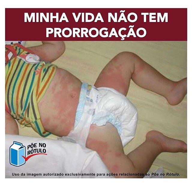 A foto da campanha traz um bebê com manchas pelo corpo, causadas por alergia alimentar (Foto: Reprodução/ Instagram)