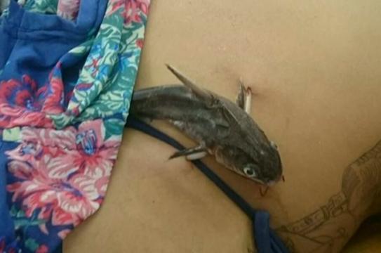 Moradora de Itanhaém é ferida por bagre (Foto: Reprodução/TV Tribuna)