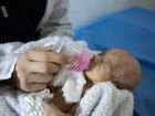 Recém-nascidos escapam de bomba em incubadoras de hospital de Aleppo