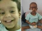 Família de Goiás luta para transferir bebê de 2 anos e 5,3 kg para SP