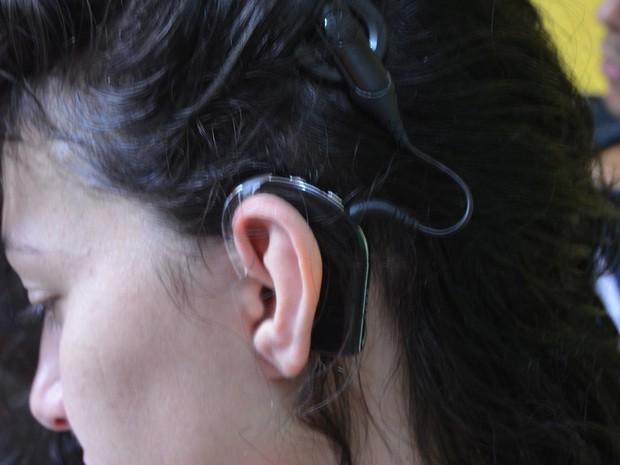 Parte do aparelho é implantado na parte externa da orelha (Foto: Aline Nascimento/G1)