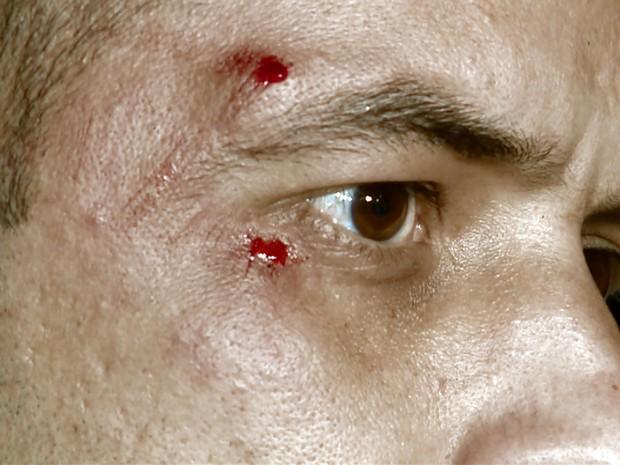 Policial militar de Campinas foi agredido por suspeito durante abordagem (Foto: Luciano Machado/EPTV)