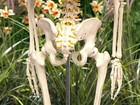 Acupuntura alcança até 300 pontos nervosos e ameniza dor nas costas