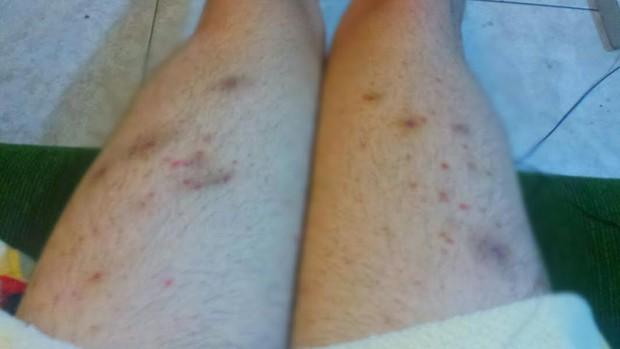 Infecção nas pernas de Ken Humano (Foto: Divulgação)