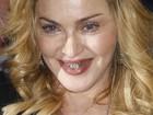 Madonna exibe dentes com 'molduras douradas' em evento